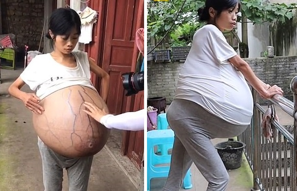 Загадочный недуг за два года превратил китаянку в «бочонок»