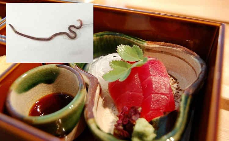 В горле любительницы сашими поселился активный червь (+ видео)
