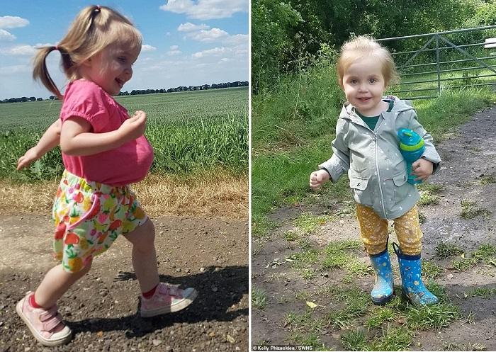 Девочка, родившаяся с желудком, печенью и кишечником снаружи, дожила до 2 лет и удивила врачей