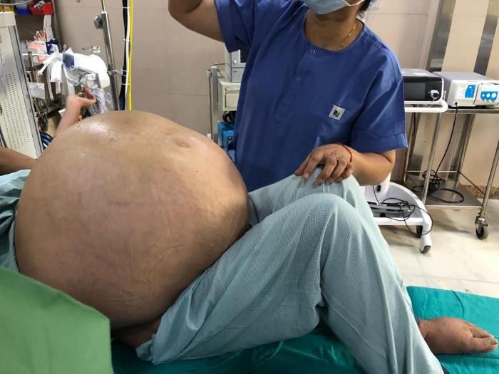Из женщины вырезали опухоль весом 50 кг