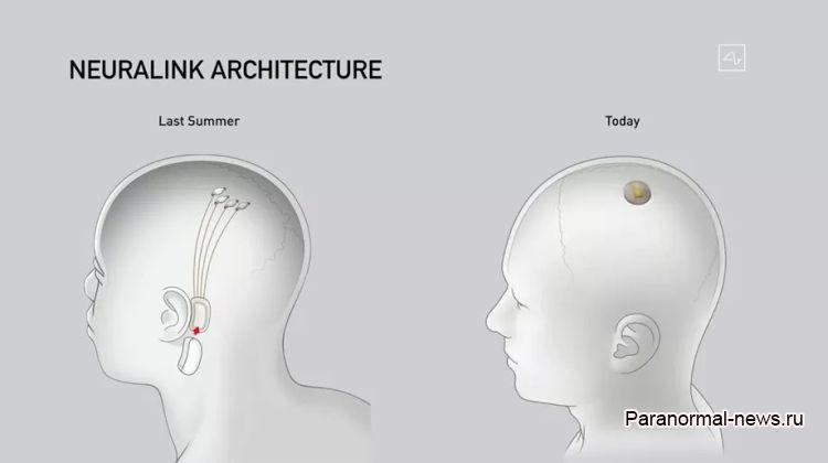 Илон Маск вживил мозговой чип в свинью и сейчас ищет добровольцев-людей