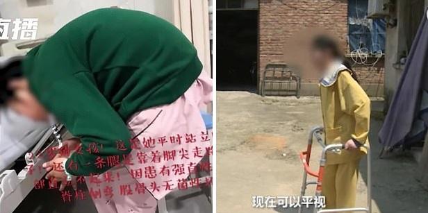В Китае разогнули девушку, которая 10 лет ходила сложенной пополам