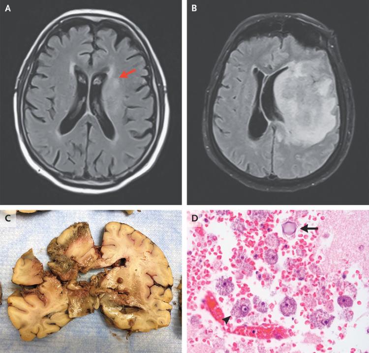 Мозг пенсионера был разрушен из-за амёбы из цветочного горшка