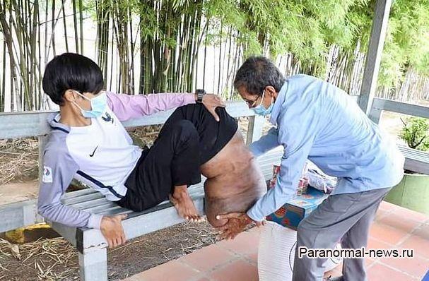 Укус комара превратил ногу камбоджийца в «раздутое тесто»