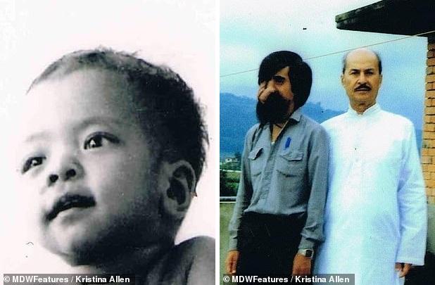 Врачи удалили уродливую опухоль с лица жителя Непала