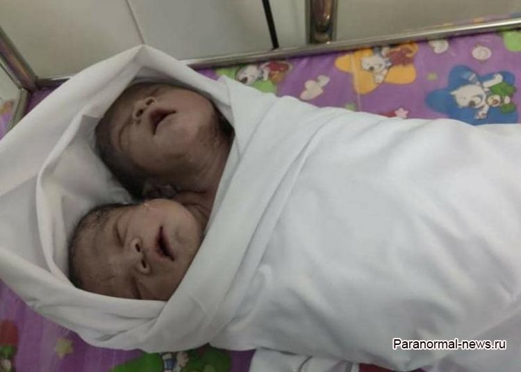 В Мьянме родился мальчик с двумя головами