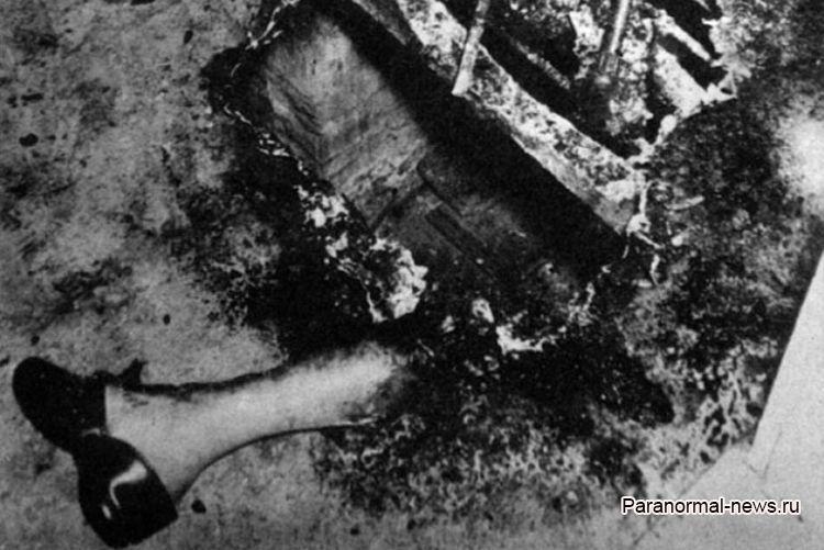 Смерть Мэри Ризер или самый известный случай самовозгорания человека