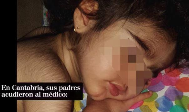 В Испании из-за ошибки с лекарствами дети обросли волосами как оборотни