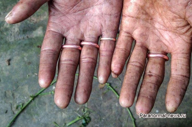 Мужчины этой семьи оказались генетически лишены отпечатков пальцев