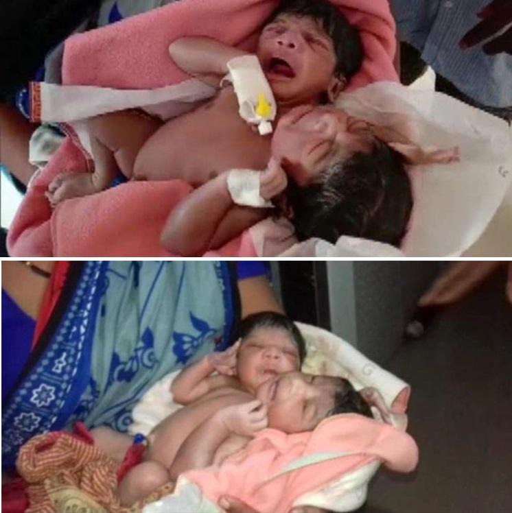 В Индии родился двухголовый и трехрукий ребенок