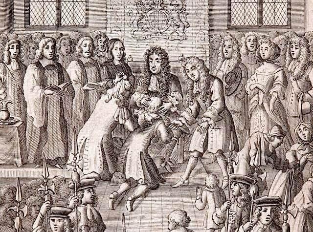 Исцеляющая сила прикосновения королевской руки: Любопытный исторический феномен