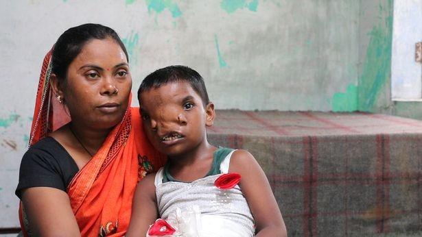 После удаления врожденного «хобота» девочка из Индии осталась с двумя носами