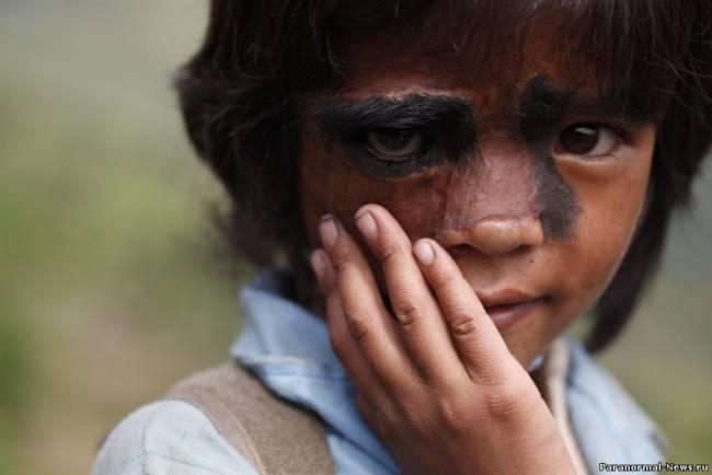 Из-за волос на лице девочку назвали ведьмой и изгнали из деревни (9 фото)