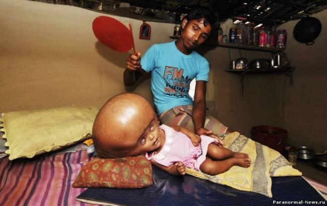 В Индии живет девочка с огромной головой (5 фото)