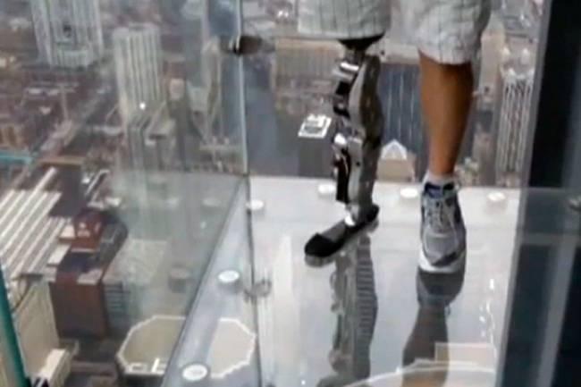 Первый в мире протез ноги, управляемый с помощью сигналов головного мозга (4 фото+Видео)