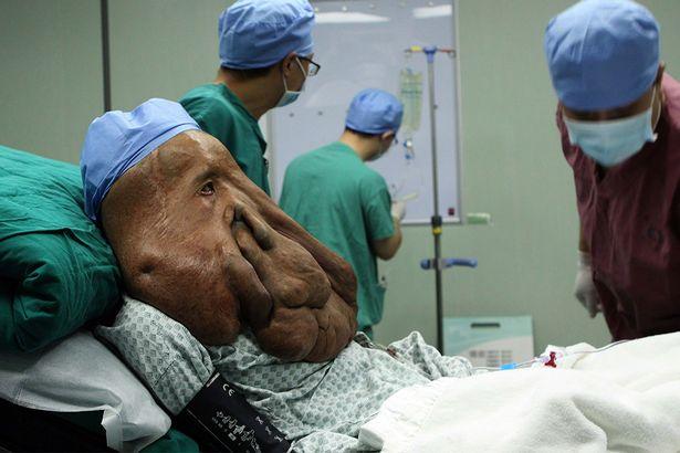 В Китае человеку-слону удалили огромную опухоль на лице (6 фото)