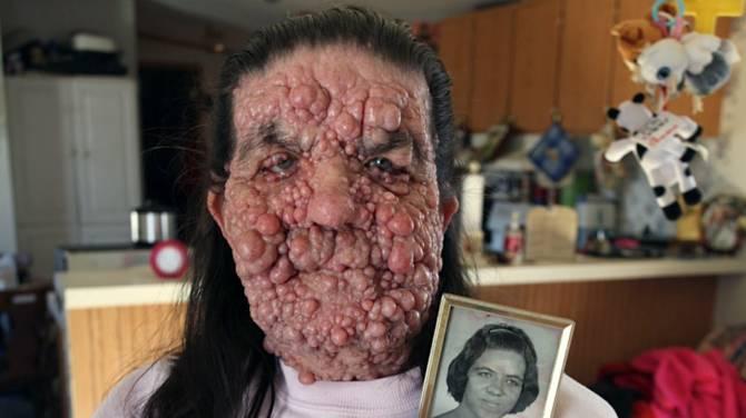 Редкое заболевание изуродовало кожу жительницы США (7 фото)