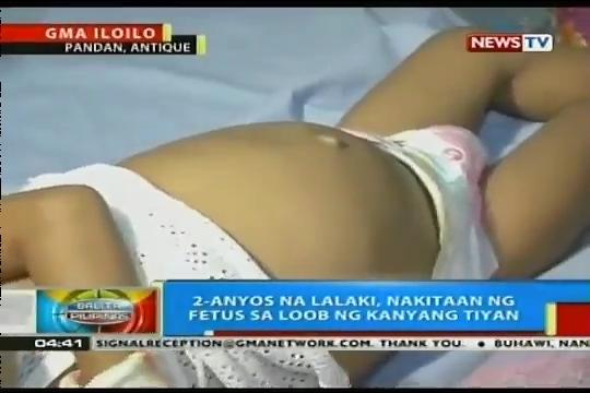 Внутри 2-месячного младенца из Вьетнама обнаружили…другого малыша