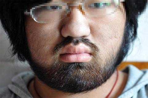 Заросшее лицо фото фото 794-965