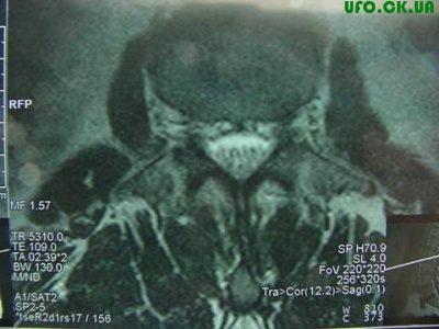 Необычный рентгеновский снимок